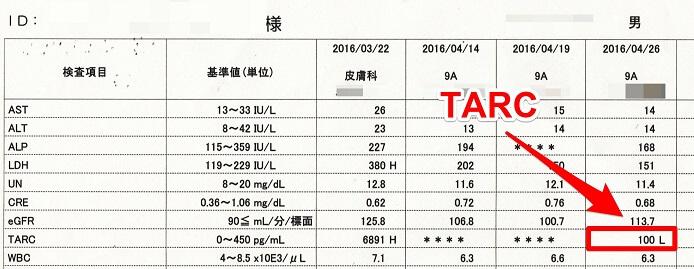 Tarcの数値